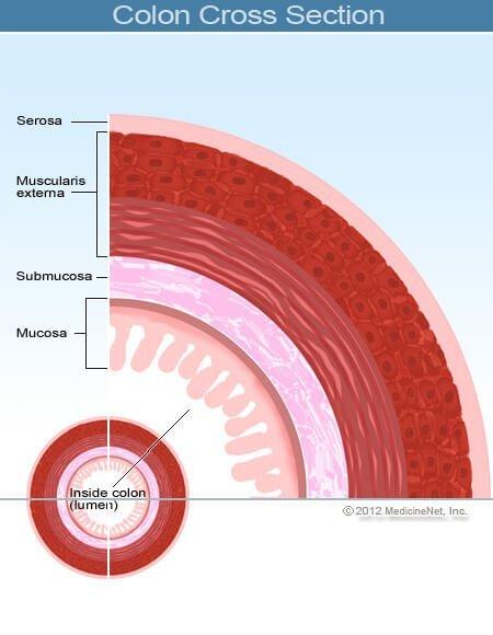 peritoneális rák mennyi ideig él gyógyszerek enterobiosis ian során