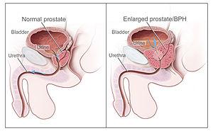 enterobiosis, mit kell szedni? vph a szájban első tünetek