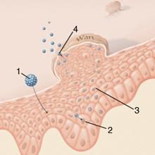 humán papillomavírus keratoacanthomában szélessávú elhelyezkedés a testben