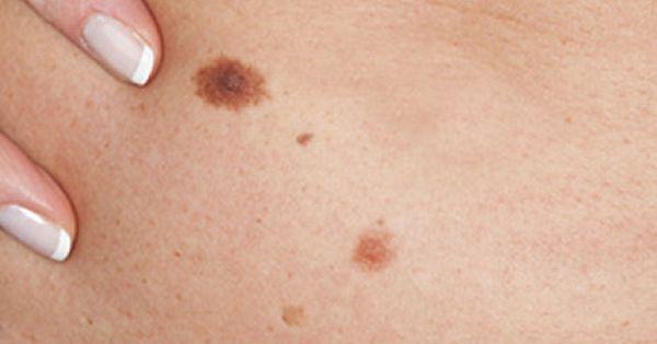 Szemölcsök elöl és hátul: a nemi úton terjedő HPV-fertőzés