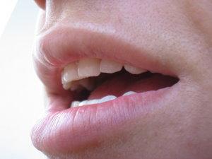 Szájrák tünetei és kezelése - HáziPatika