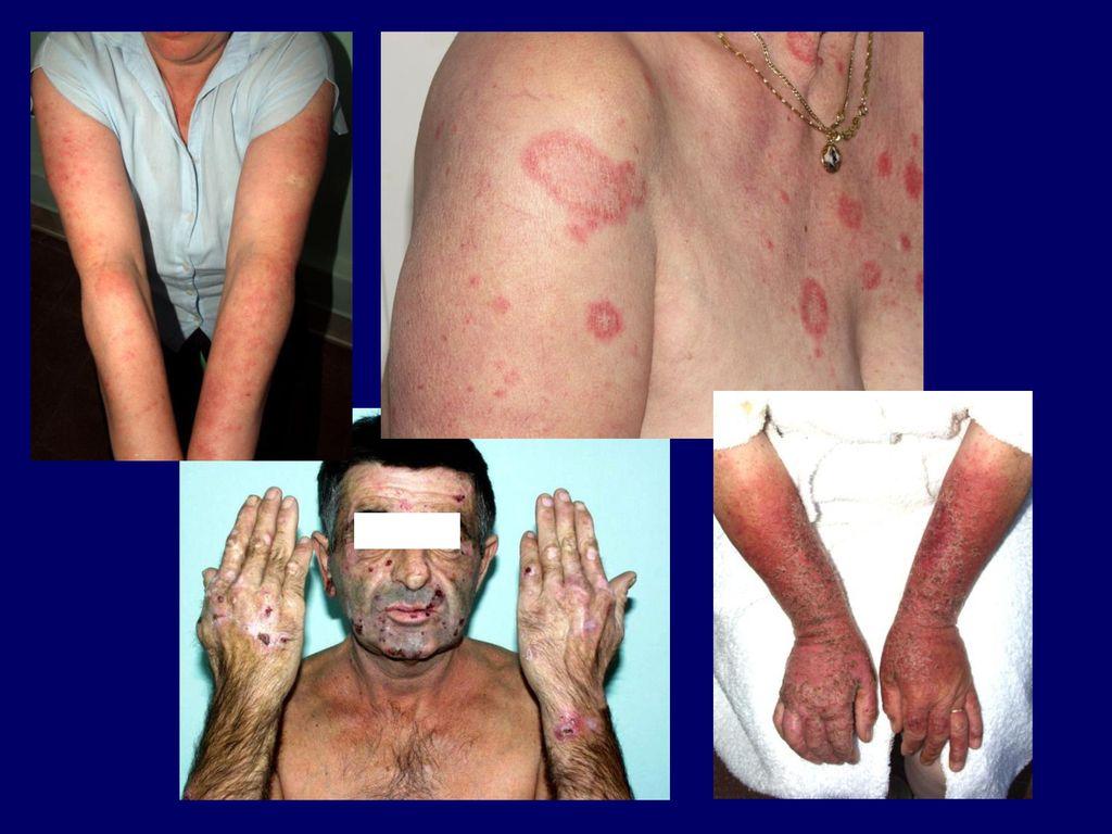 tetoválásból származó bőrrák szopás szemölcsök