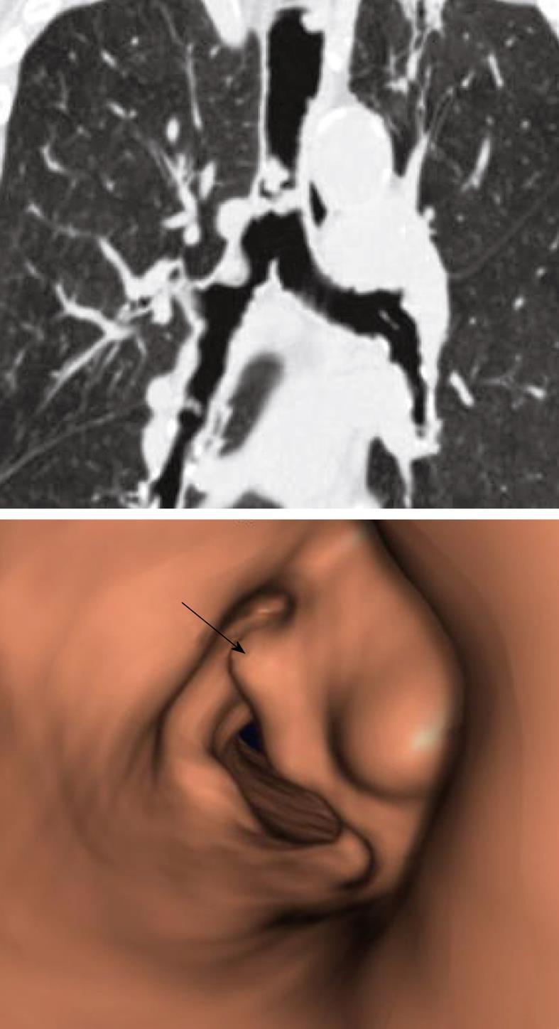 trachealis papillomatosis oka