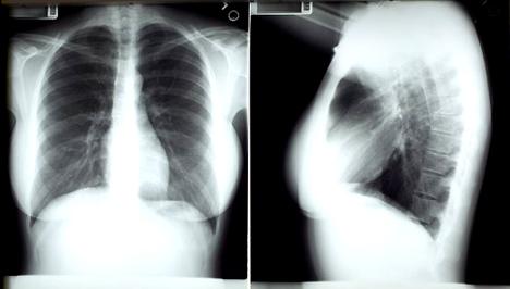 Tüdőrák | Magyar Rákellenes Liga