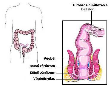 vastagbélrák tumor markerek