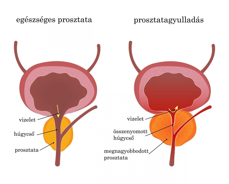 a prosztatarák korai diagnózisa