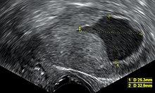 endometrium vastagbélrák