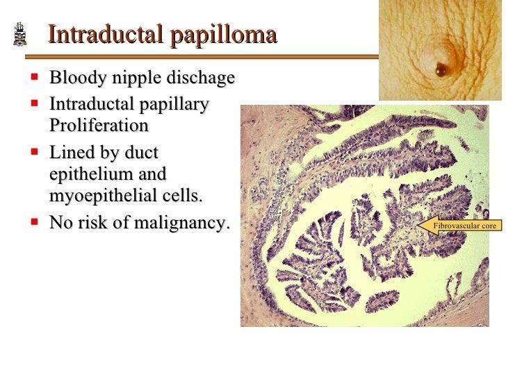 intraductalis papilloma vs fibroadenoma légzési papillomavírus