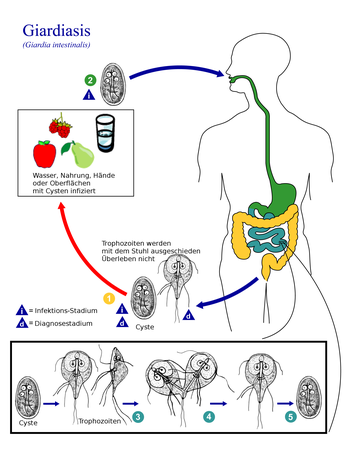 Giardien mensch behandlung, Dr. Diag - Giardiasis