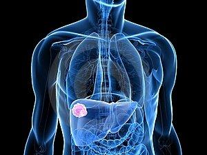 hormonális rák prognózisa