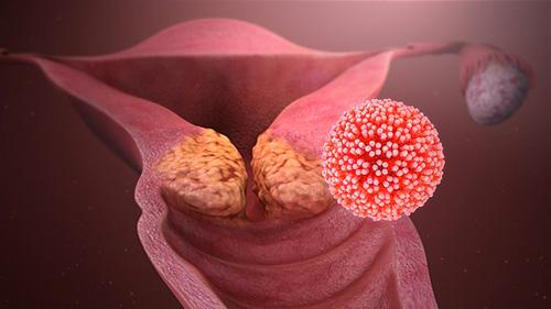 hpv vírus krebsvorstufen paraziták rózsaszín lazacban