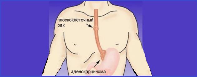 Humán papillomavírus Egyéb papilloma vírus tünetei