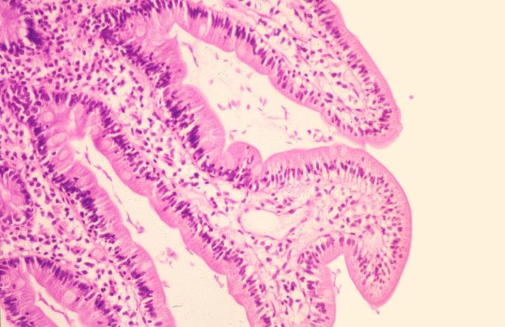 A Helicobacter paraziták kezelése