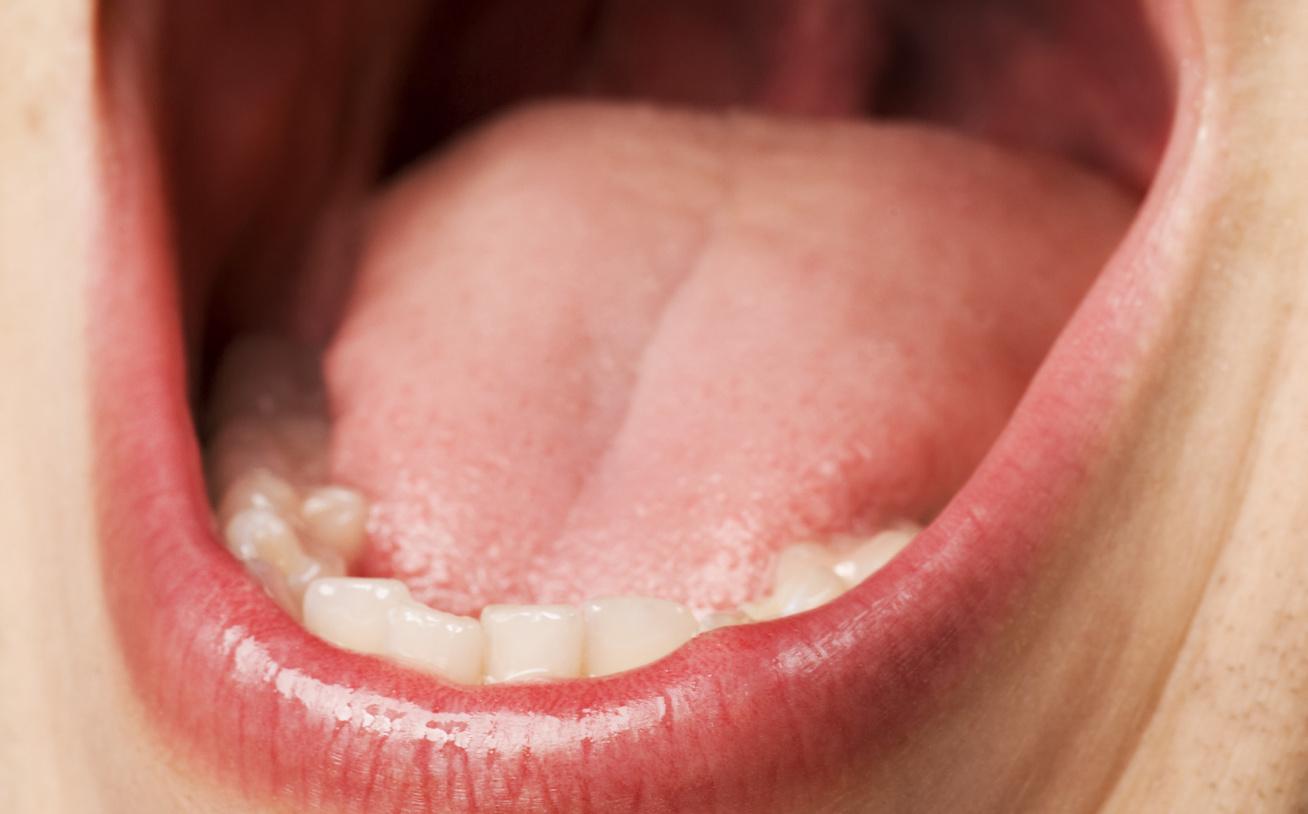 papilloma a belső ajkakon