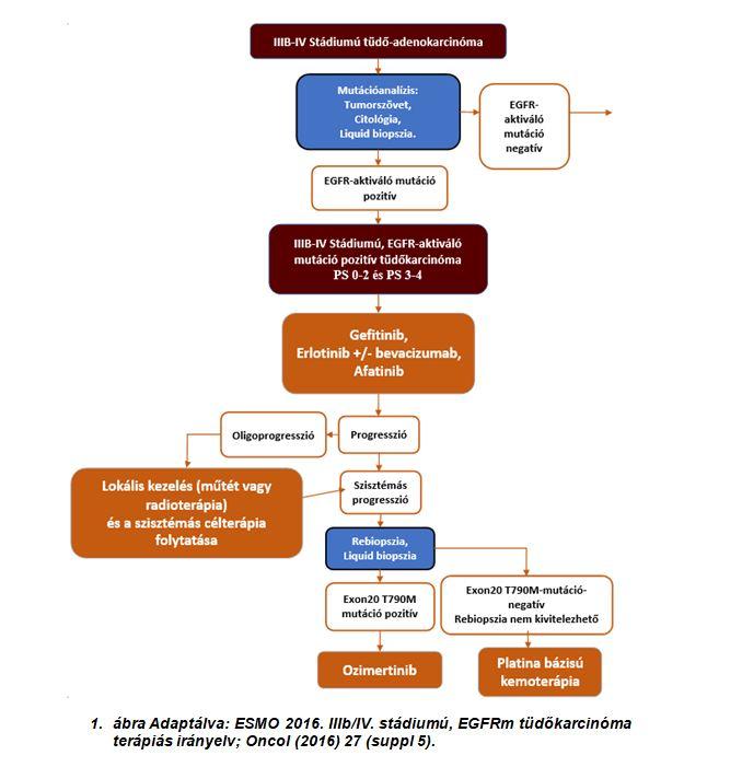 IV. Stádiumú tüdőrák (4. szakasz)