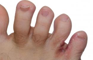 ''Fáj minden porcikám'' | notafa.hu - Egy ízület fáj a lábon lévő kukorica alatt