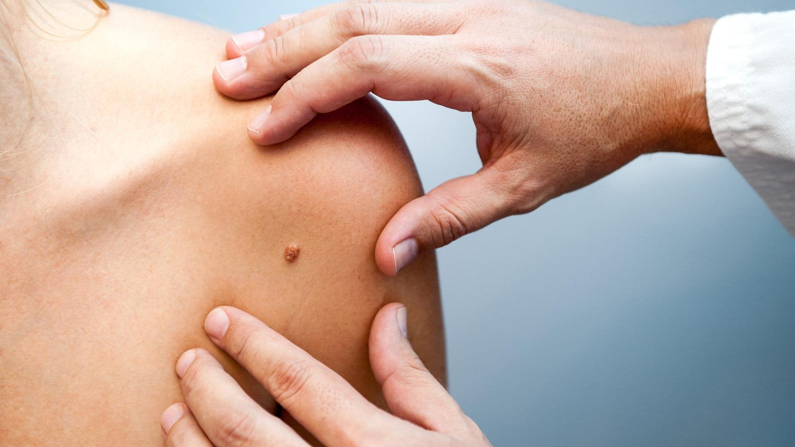 A prosztatagyulladás tünetei | BENU Gyógyszertárak