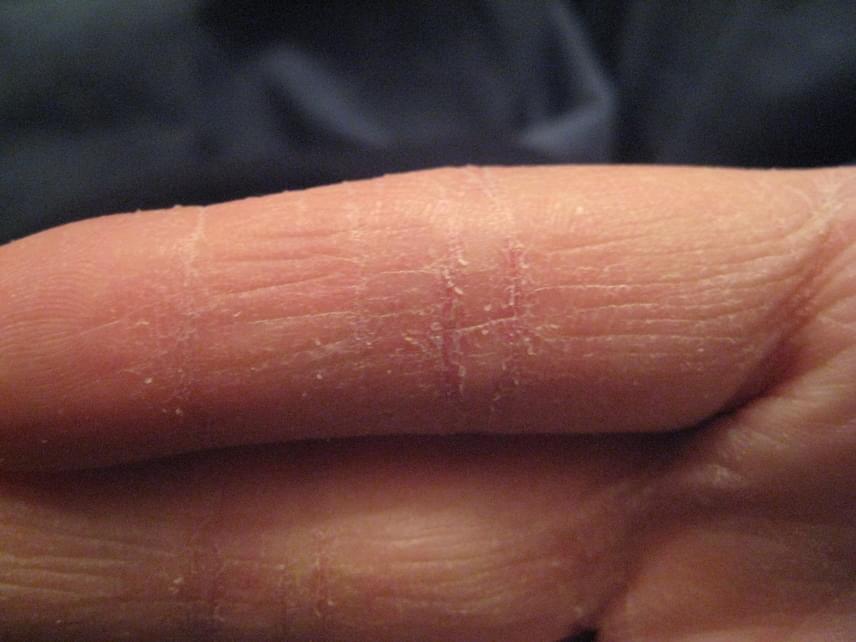 nedvesedni az ujjai között lábszemölcs természetes kezelés