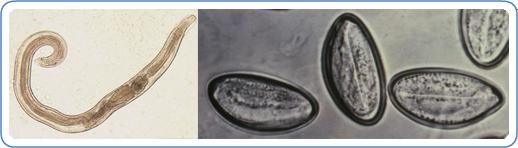 Pinworm beöntés ,hogyan lehet a férgeket megjeleníteni és hogyan néznek ki a képen