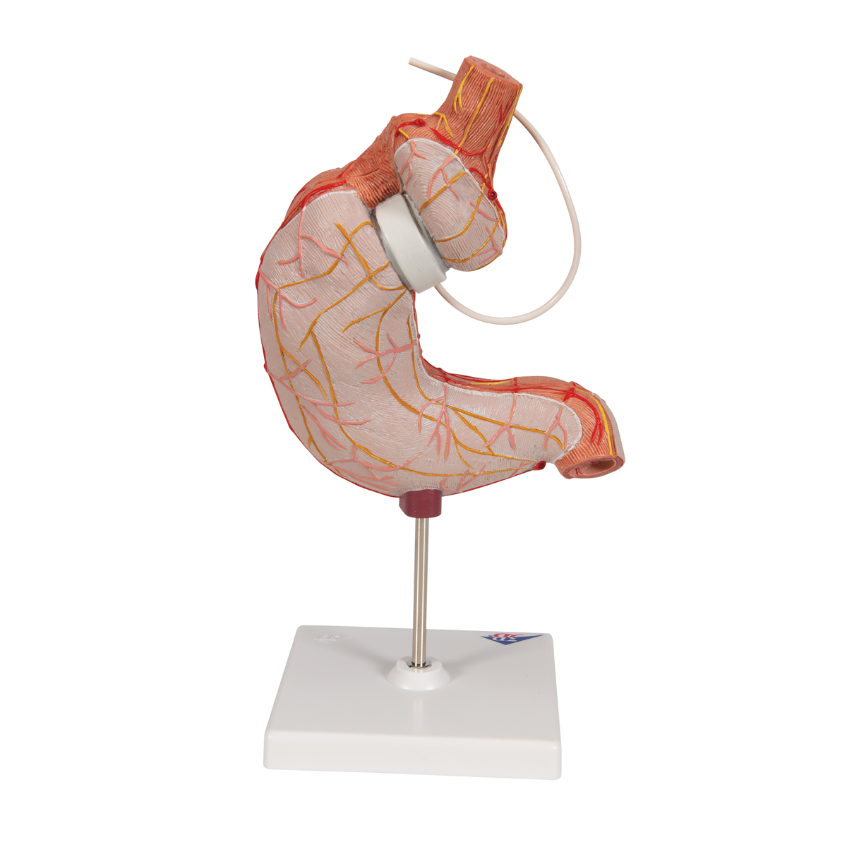 endometrium rák terhesség gyomorrák krukenberg