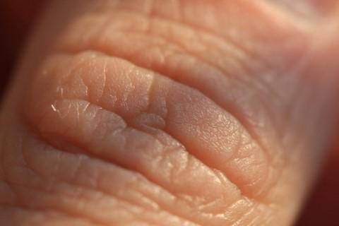 Tévhitek az anyajegyekkel és a festékes bőrrákkal kapcsolatban - Dr. Siklos Krisztina