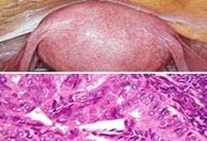 a körömféreg rövid leírása