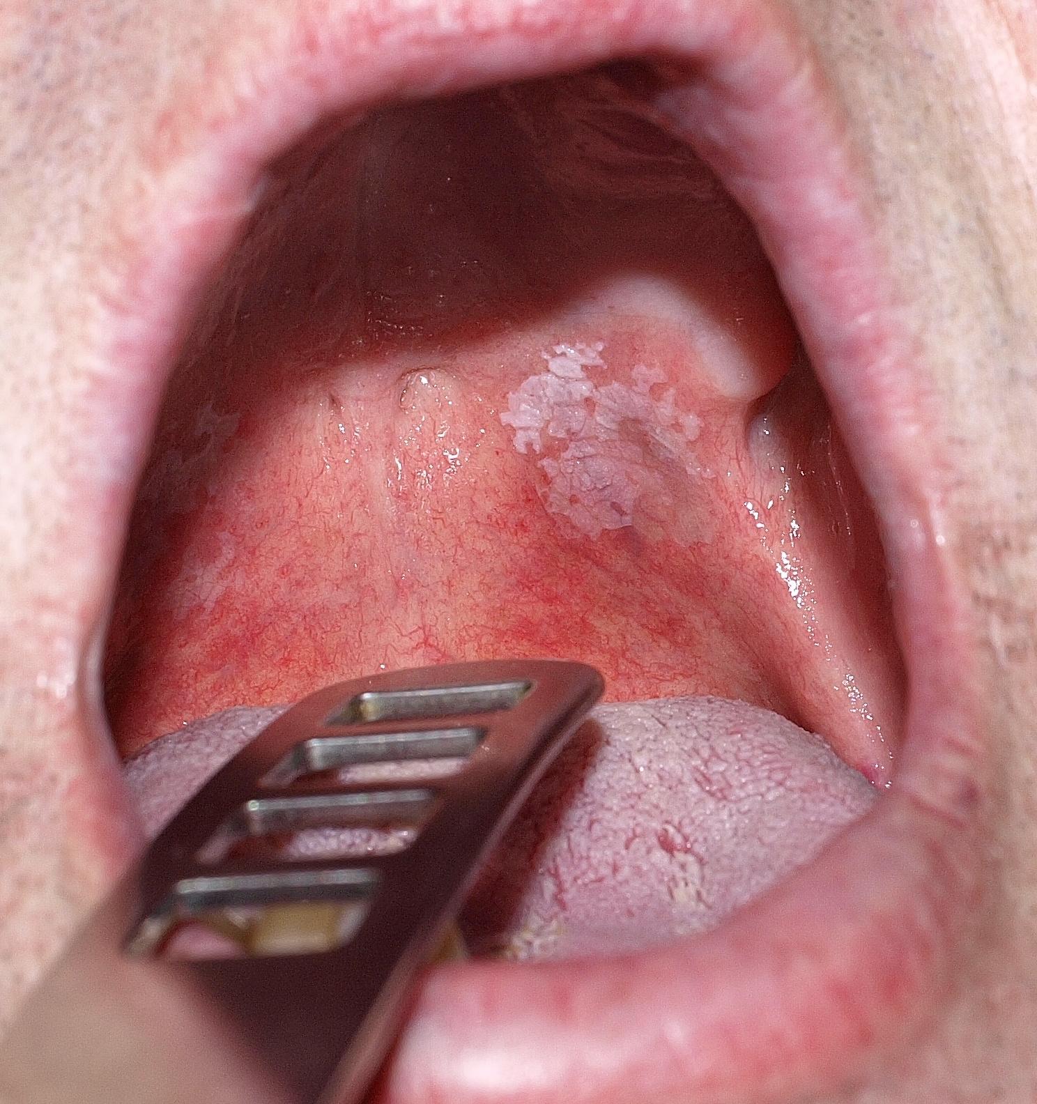 szemölcs a száj belsejében