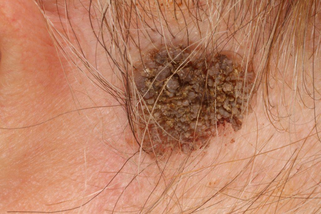a hólyag átmeneti sejtes papillómája természetes gyógymódok a pinwormok kiküszöbölésére