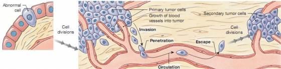 Gerinc daganatok