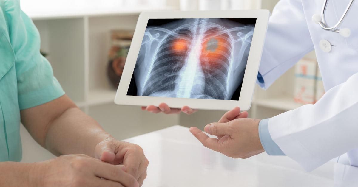 a tüdőrák átterjed