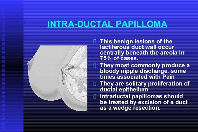 intraductalis papilloma vs fibroadenoma helmint kezelés kisgyermekeknél