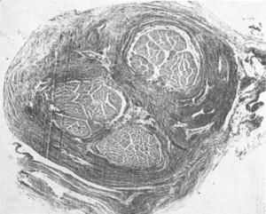 condyloma hüvelyi tünetek schistosomiasis florida