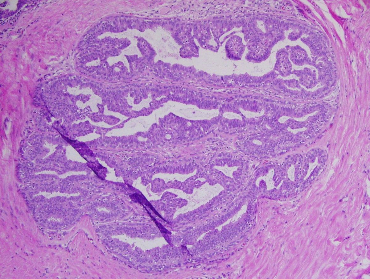 Méhnyakrák megelőzés - HPV elleni védőoltás
