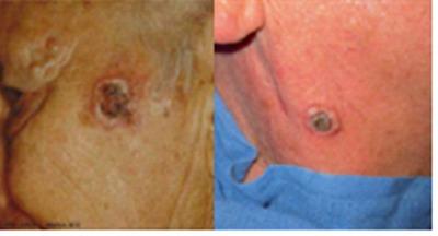 Rákot okozhat a tetoválás?