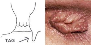 hpv tünetek a végbélben