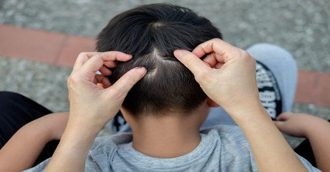 gombás papillae nyelv kezelése szemölcsök okai