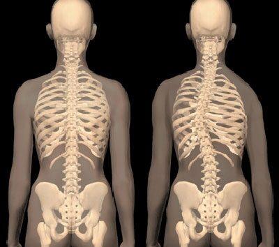 A gerincféreg legjobb gyógyszerei - A betegség diagnózisának jellemzői