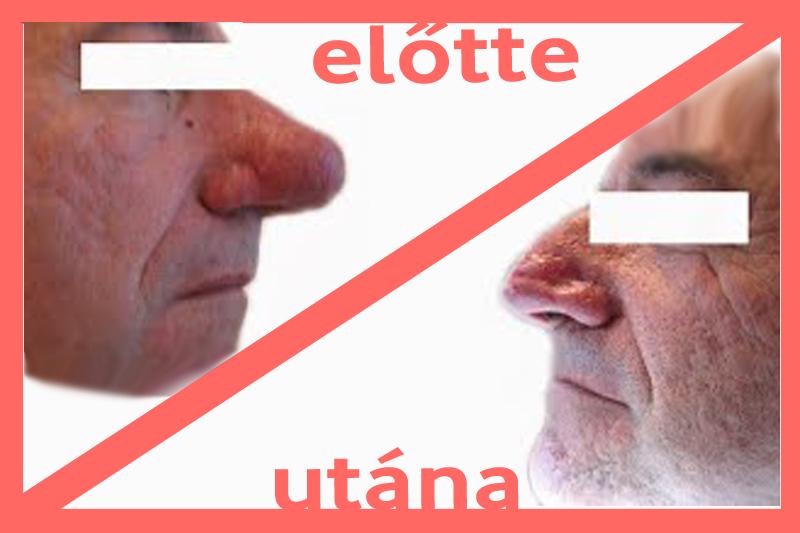 fordított orr-papillóma kezelése