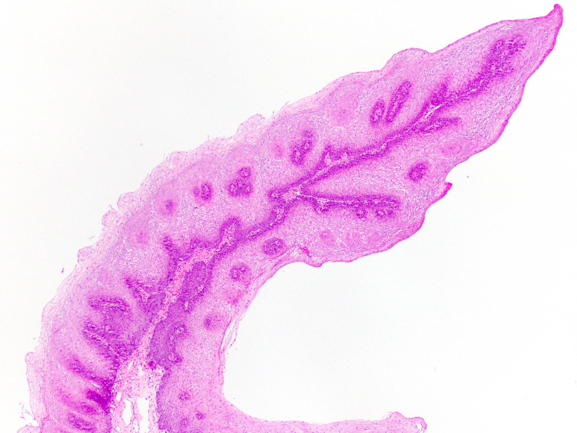 Endovaszkuláris prosztata adenoma