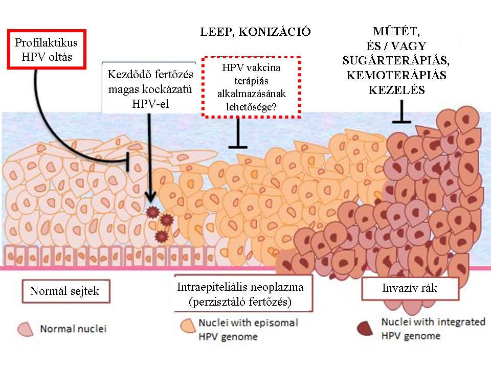 hpv magas kockázatú genotípus 16 18