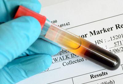 lokalizált prosztatarák hpv vakcina mellékhatások USA