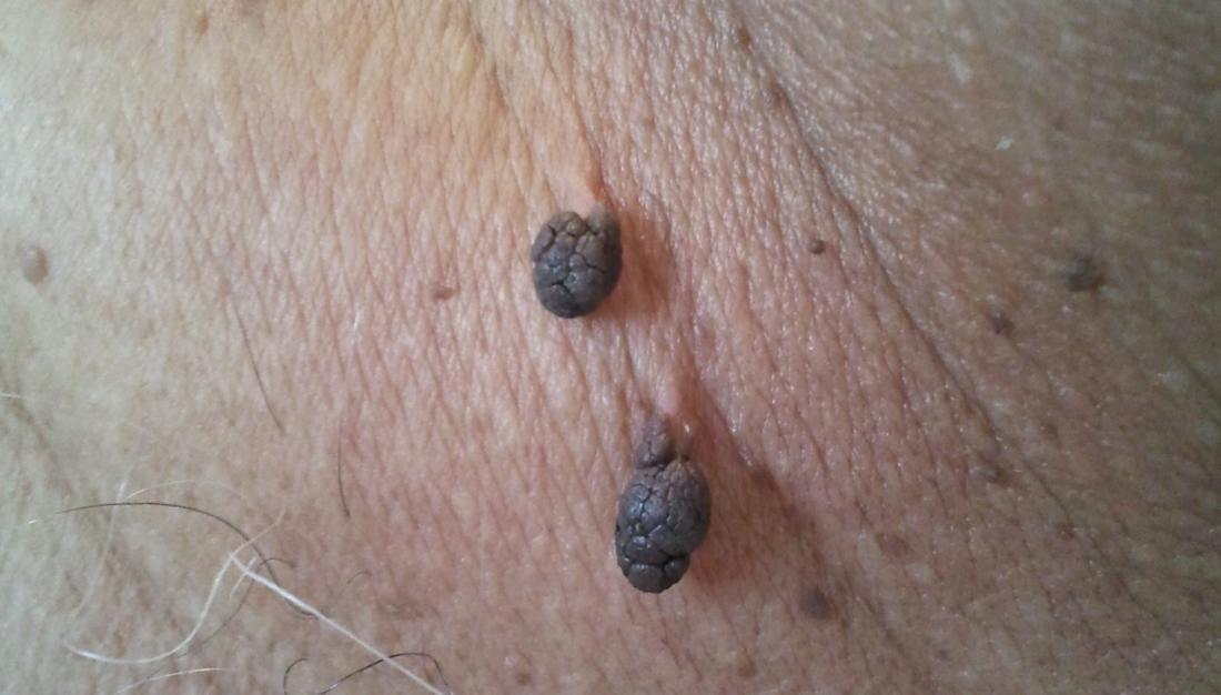 paraziták okozta laktóz intolerancia giardia férgekkel történő kezelés