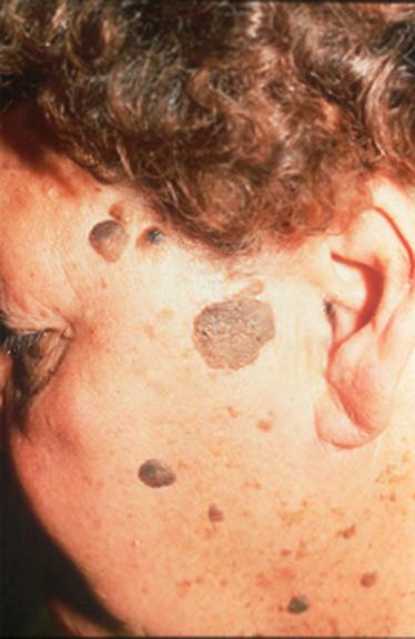 Mi micsoda a bőrünkön? Keratosis seborrhoica. - Kuroli Enikő