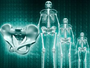 Hogyan alakulnak ki a csontáttétek?