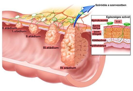 vastagbélrák és vérszegénység